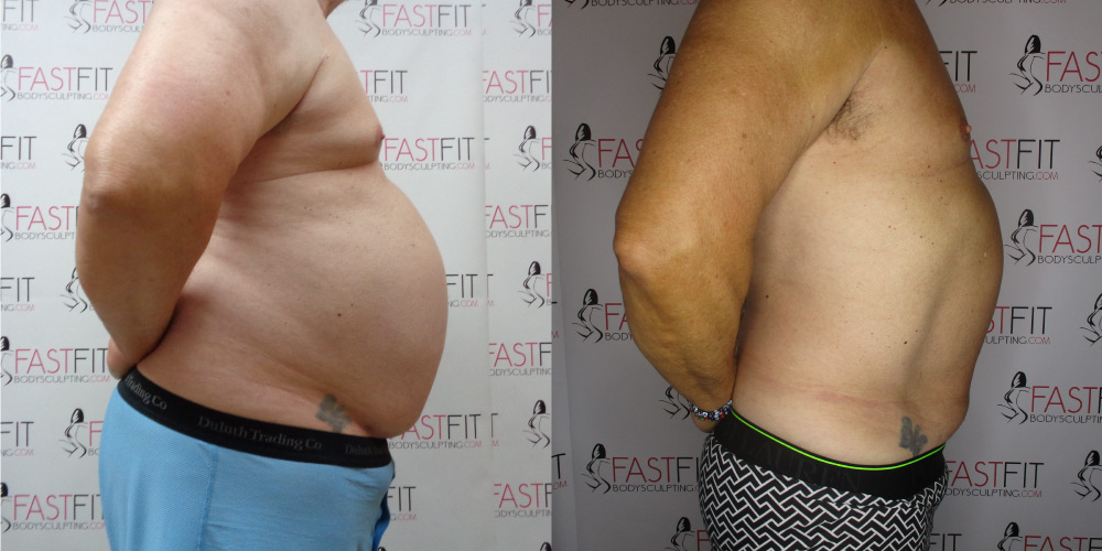 fast fit body sculpting weight loss review ben