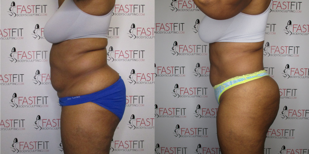fast fit body sculpting weight loss review desiree