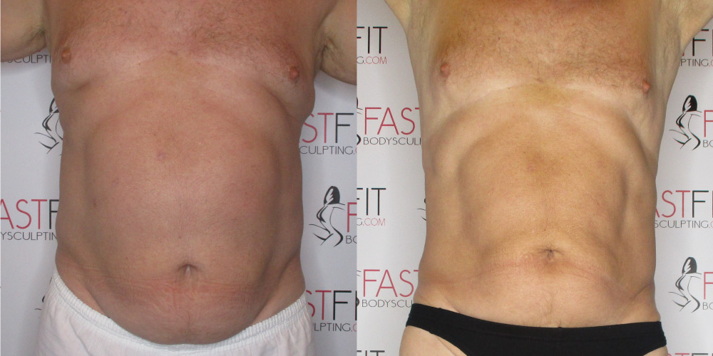 fast fit body sculpting weight loss review ron