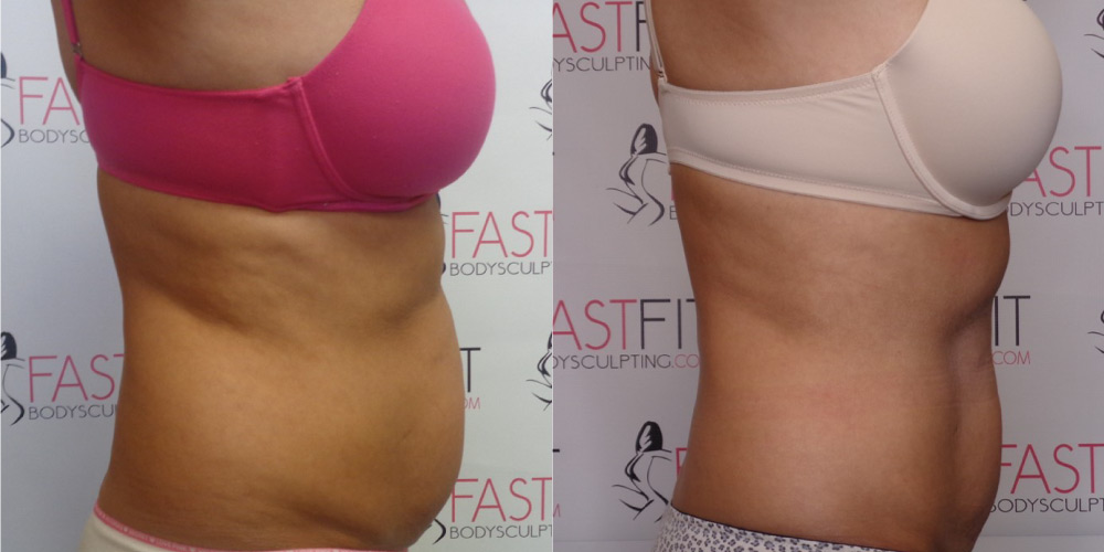 fast fit body sculpting weight loss review susie