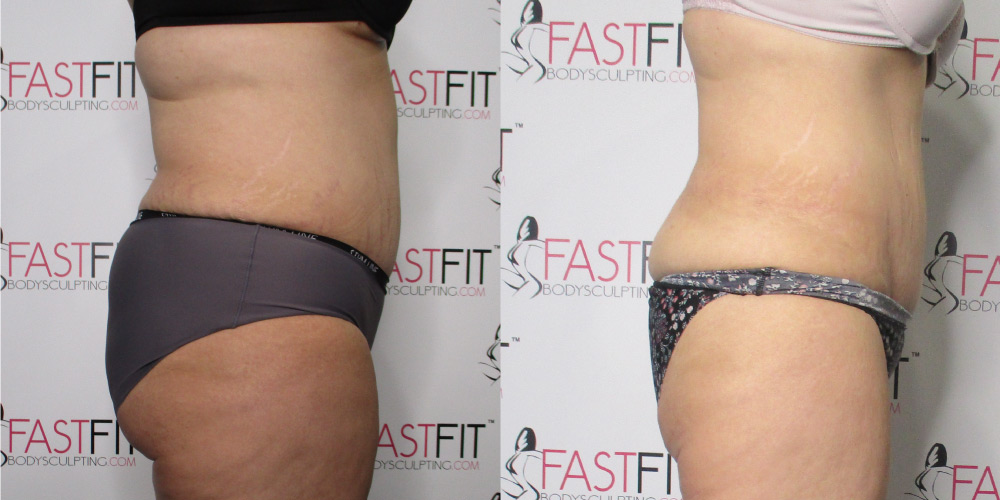 fast fit body sculpting weight loss review teresa