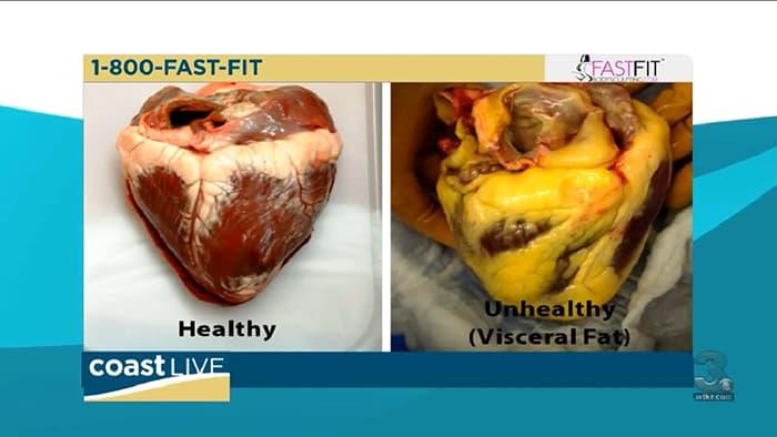 Is Visceral Fat Dangerous?