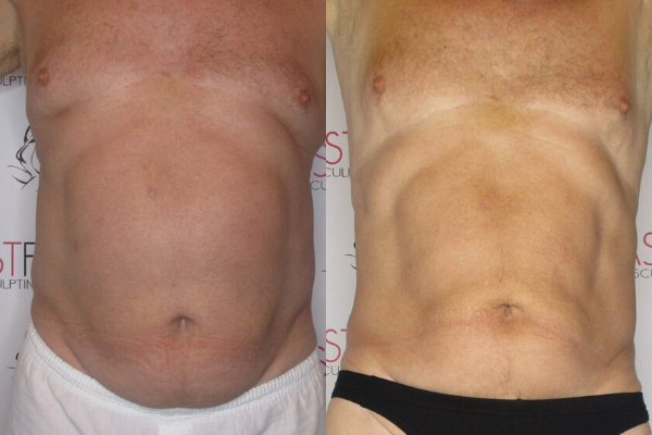 rons-before-and-after-for-review-of-fast-fit