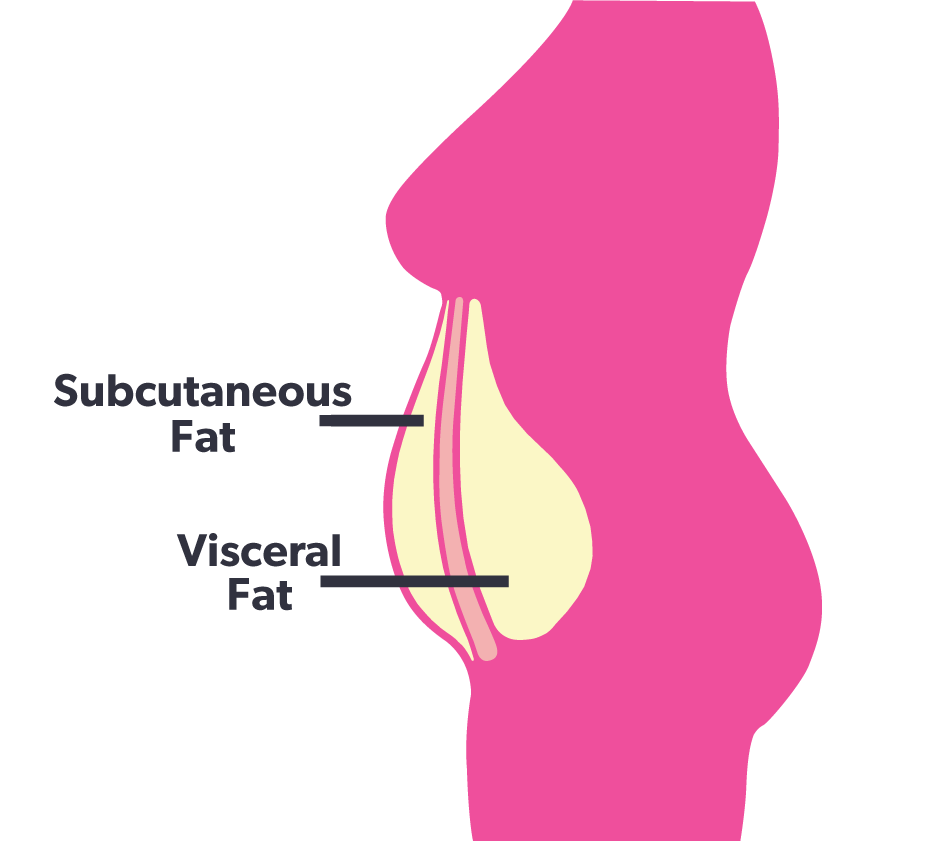 Visceral Fat vs. Subcutaneous Fat