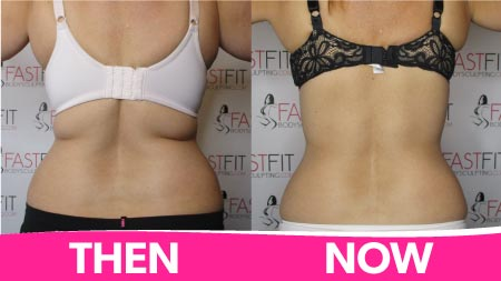 fast-fit-body-sculpting-before-and-after-picture-weight-loss-robin